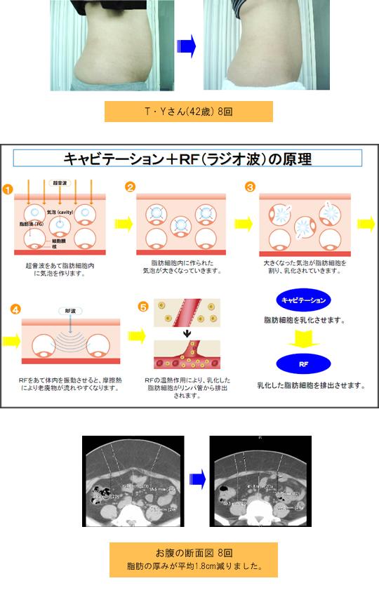 menu_cavitation_about03_img02